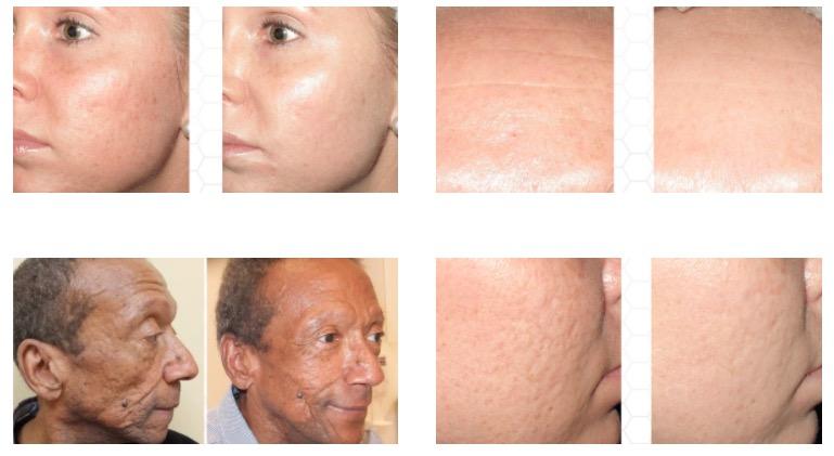 Microneedling - Huntington Dermatology